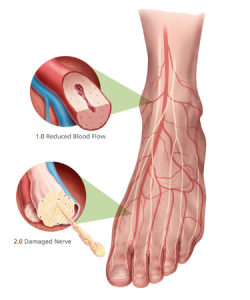 Diabetic Foot Complications