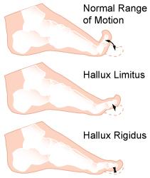 hallux limitus