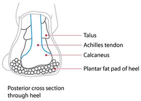 Fat Pad Heel Injury