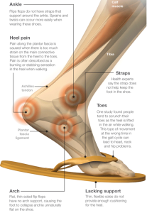 feet hurt in thongs