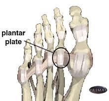 Plantar plate