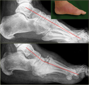 diabetes arthritis charcot