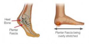stretched plantar fascia