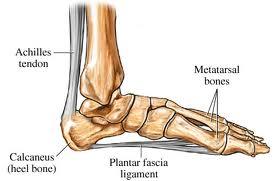 plantar fasciitis spreading up my leg