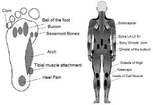 do i need orthotics