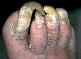 worst toenails