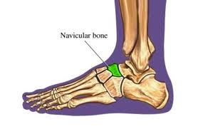 Location of the Navicular Bone