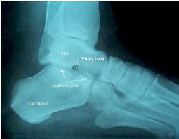 lateral foot xray