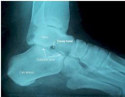 lateral foot xray
