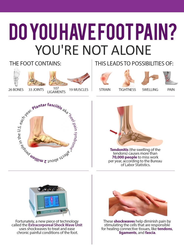 Shockwave Therapy for Plantar Fasciitis