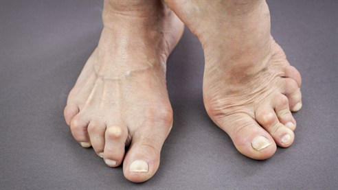 Rheumatoid Arthritis in the Foot