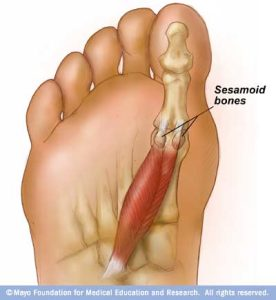 Sesamoiditis / sesamoids of the foot