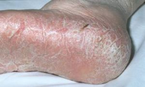 Dry, cracked tinea