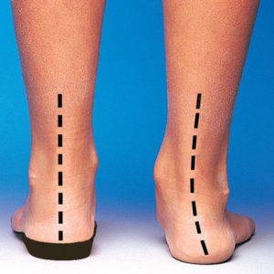 Orthotics Correct Alignment