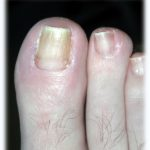 Ingrown Toenail Surgery Brisbane