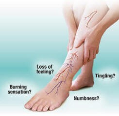 peripheral neuropathy treatment brisbane