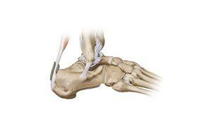 Ankle pain bones